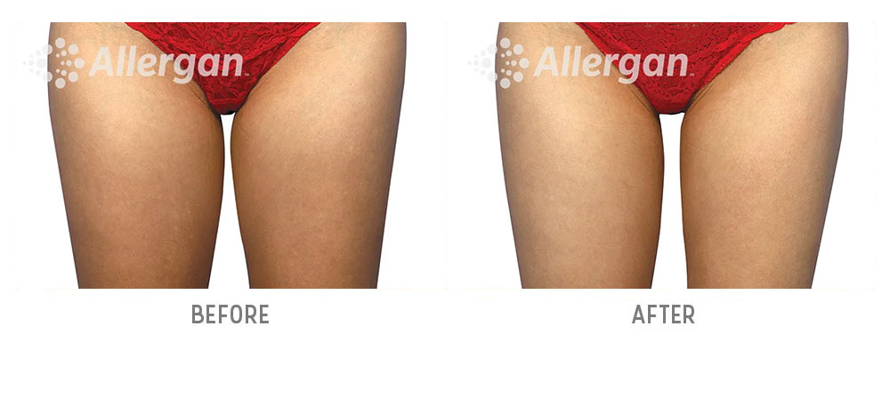 leg coolsculpting before and after - patient 002 - front view