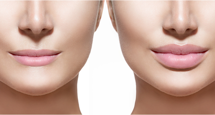 cosmetic injections before and after - lip fillers - model image